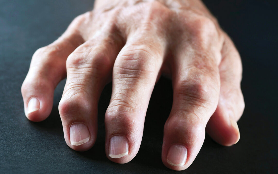Relief from Arthritis